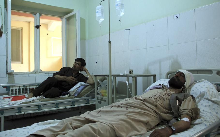 Injured workers of HALO Trust de-mining organization are treated at a hospital in northern Baghlan province, Afghanistan, Wednesday, June 9, 2021. Workers of the organization were attacked on Tuesday night by the armed gunmen.