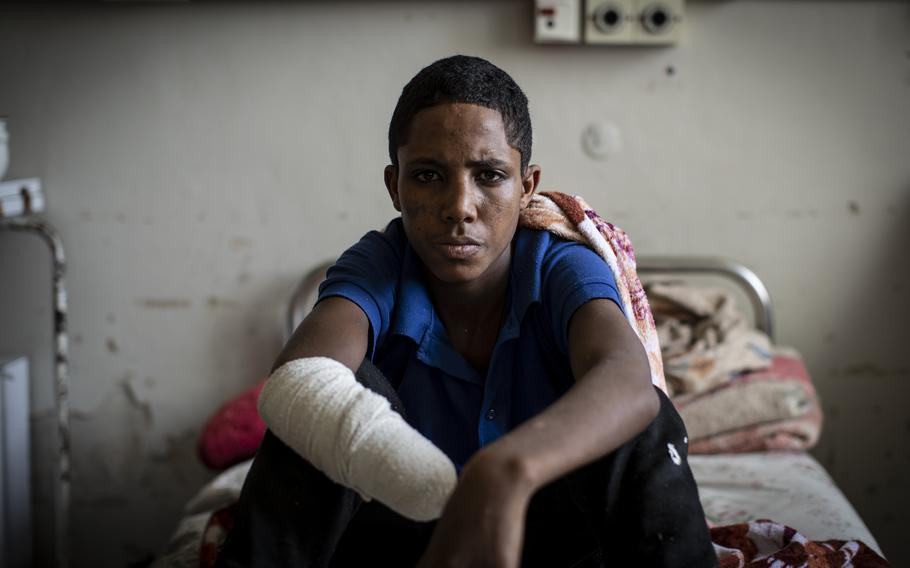 Haftom Gebretsadik, a 17-year-old from Freweini, Ethiopia, near Hawzen, who had his right hand amputated and lost fingers on his left after an artillery round struck his home in March, sits on his bed at the Ayder Referral Hospital in Mekele, in the Tigray region of northern Ethiopia, on Thursday, May 6, 2021.