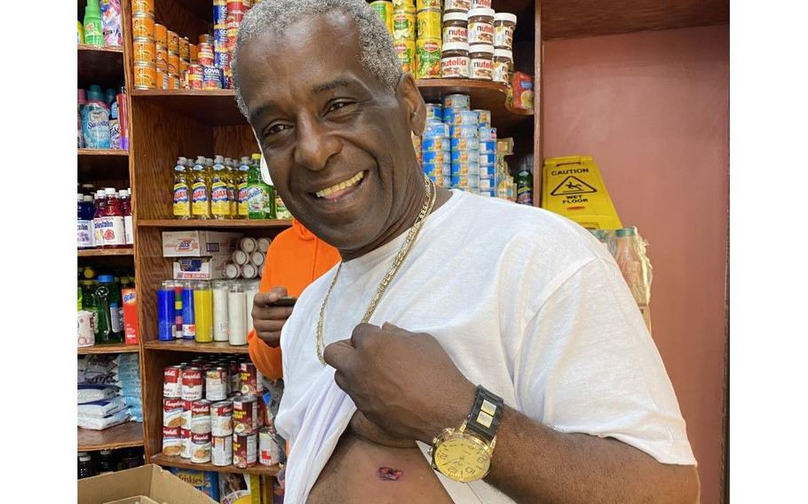 Tony Grier, 59, shows his gunshot wound after taking a stray bullet in Harlem on July 13, 2021.