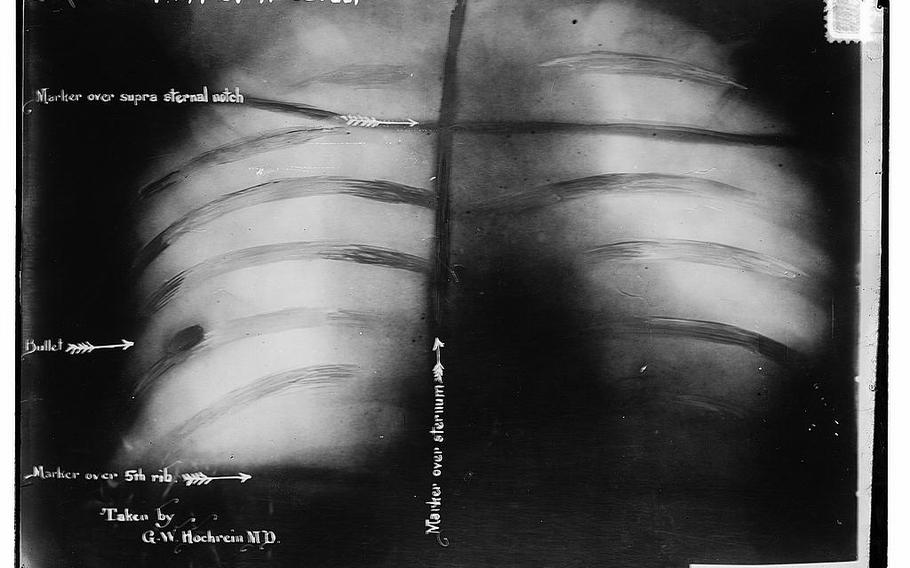 An x-ray image of Theodore Roosevelt's chest showing the bullet lodged in his chest muscle. It remained there for the rest of his life.
