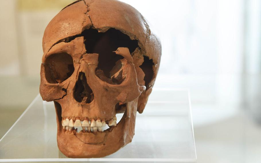 The skull of a man from the Roman era found near Regensburg, Germany. Regensburg was a Roman fort on the edge of the Roman Empire called Castra Regina.