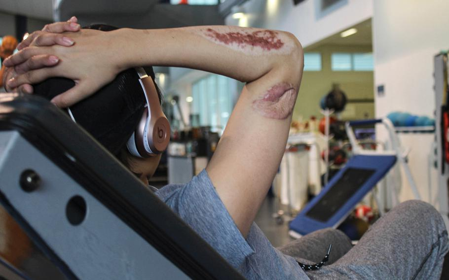 Kianni Martinez at physical therapy at the Center for the Intrepid at Fort Sam Houston in San Antonio on Feb 6, 2017. Martinez trains to recover her strength following her injuries in the Brussels airport bombing last March, and to prepare for the rigors of Air Force ROTC.