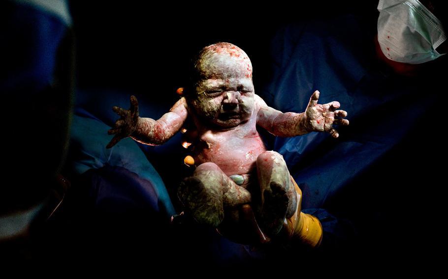 "Christian Berthelot, ""caesar #19""   Children born by incision."