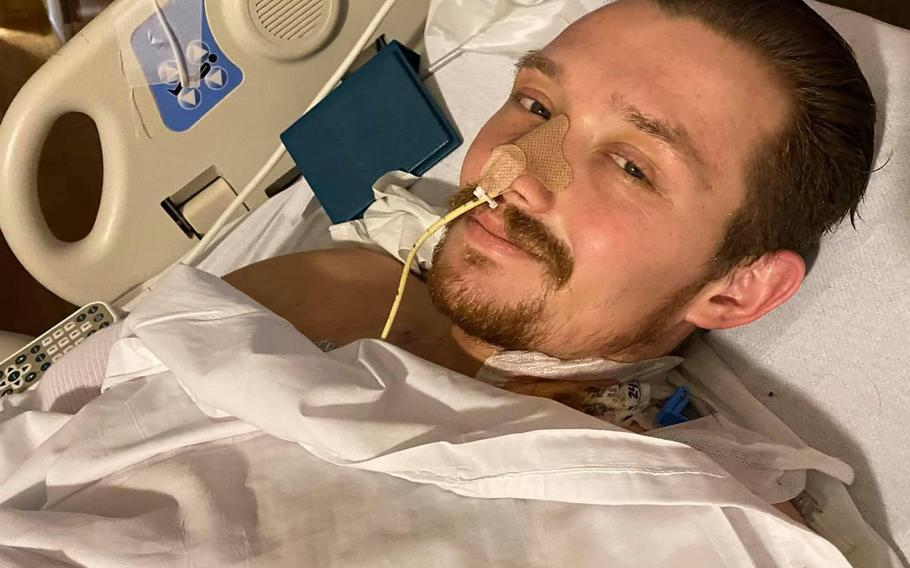 """Tyler Andrews, 23, underwent his 20th surgery this week as part of ongoing treatment for """"catastrophic"""" injuries he suffered as a result of a suicide bomber attack on Aug. 26 at Kabul's Hamid Karzai International Airport."""