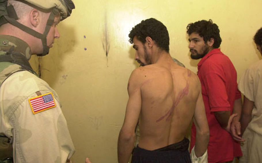 A military policeman examines the whip scars on an Iraqi prisoner's back Friday morning following a raid at a police station in Sabi Abor, Iraq.