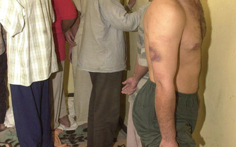 An Iraqi prisoner shows bruises on his arms and legs following a U.S. military raid of the Iraqi police station Friday in Sabi Abor, Iraq.