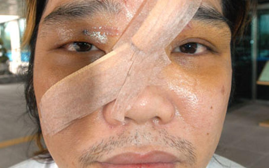 This photograph of Cho Su-Whan, 34, was taken shortly after he told police three U.S. soldiers had accosted him and one cut his face with a broken bottle.