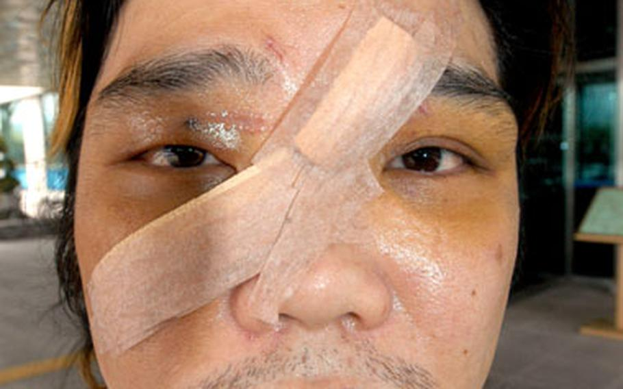 Cho Su-Whan, 34, required eight inches of stitches to close a gash after being hit with a bottle on July 2. A U.S. soldier has pleaded guilty in the attack.