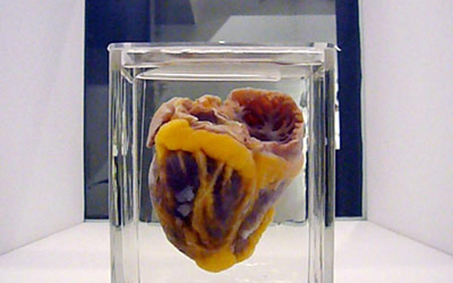 A human heart, along with other hearts from various animals, are part of the heart exhibit inside the Wellcome Collection.