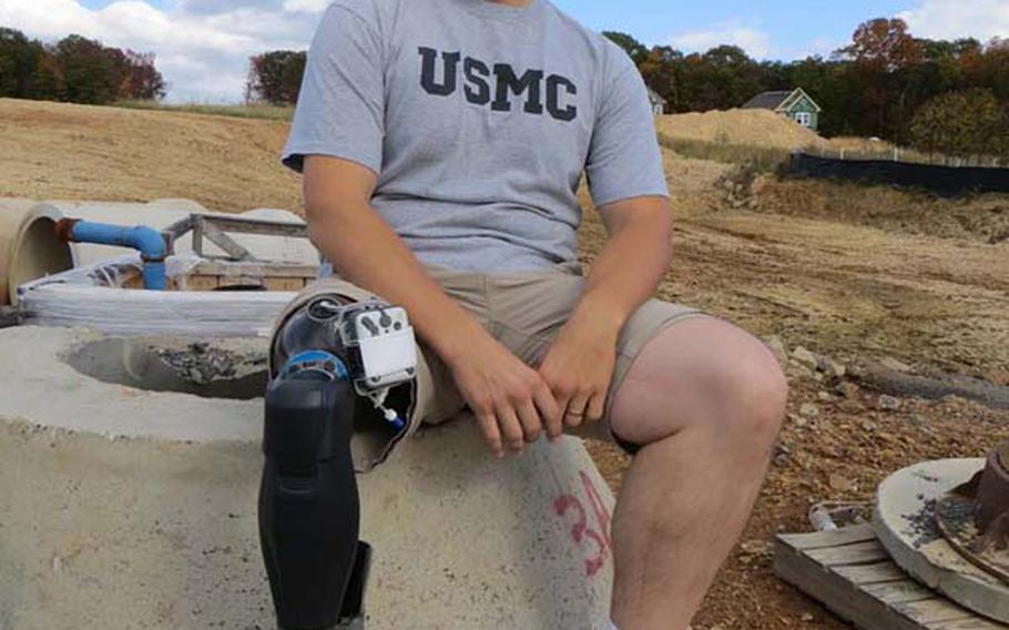 New developments in lower limb prosthetics that mimic the human body have dramatically improved the life of retired Marine William Gadsby, who was wounded by an IED and sniper's bullet in Iraq that ultimately claimed his right leg. Here, Gadsby wears his X2 microprocessor knee from Ottobock and BiOM ankle, developed by iWalk. When used together, Gadsby can walk with a natural gait like the uninjured, without pain and fatigue, and has resumed his active lifestyle. Gadsby can now hike mountain trails and walk naturally on sand dunes, something that has allowed for exercise and greatly improved his mental well-being.