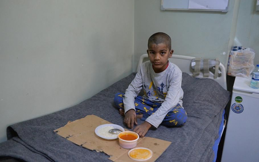 Saar, 10, eats lunch on his bed at the West Erbil Emergency Hospital on Saturday, March 11, 2017. His hands and face are blemished with fresh burns from an apparent chemical weapons attack in east Mosul earlier this month.