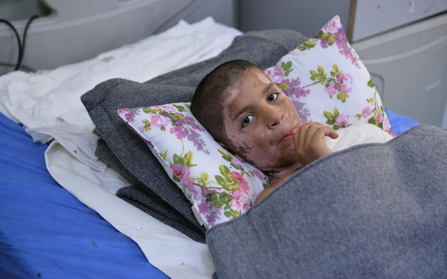 Yasiv, 11, wounded in an apparent chemical attack in east Mosul in early March, recuperates in a hospital bed at an emergency hospital in Irbil, the capital of Iraq's autonomous Kurdish region, on Saturday, March 11, 2017.