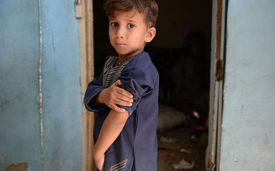 A young Afghan boy on Oct. 8, 2017, reveals the wounds he got when a U.S. missile hit is house in Kabul more than a week before, injuring several of his family members.