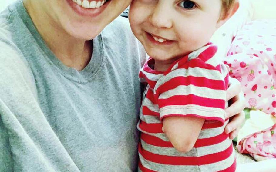 Katie Whiddon poses with her son, Camden, who was born with a rare condition that affects his limbs.