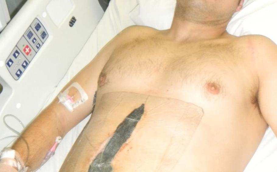 Staff Sgt. Kevin Flike recovers from a gunshot wound at Brooke Army Medical Center in San Antonio, Texas, in October 2011. Flike, 35, needed six surgeries as part of his recovery.