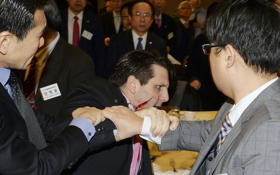 Injured U.S. Ambassador to South Korea Mark Lippert, center, is helped by other participants after he was slashed on the face and wrist by a knife-wielding man at a lecture hall in Seoul, South Korea, on Thursday, March 5, 2015.