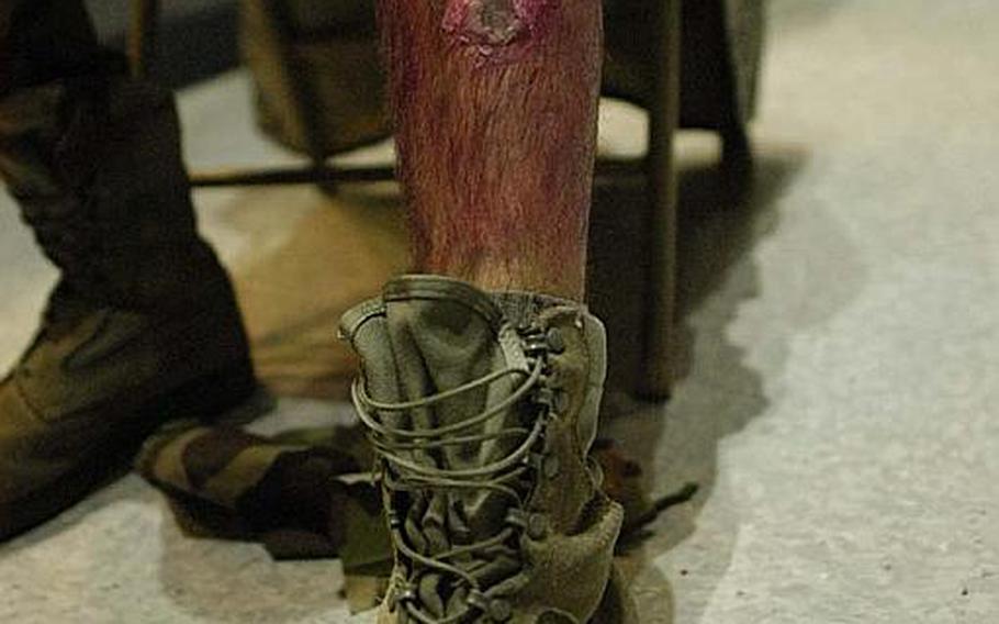 "Airman 1st Class Benjamin Bell displays a ""wounded leg"" during a mock disaster exercise on Nov. 6, 2012, at Yokota Air Base."