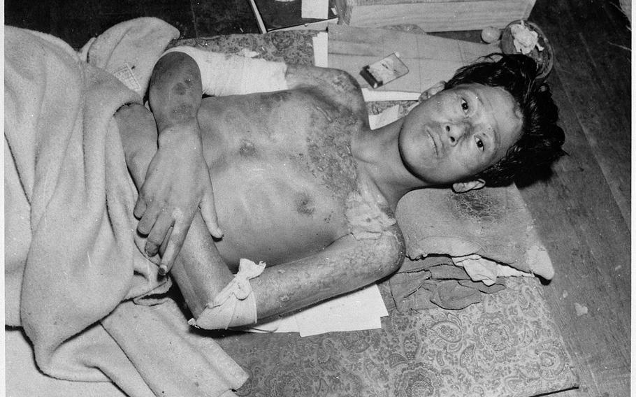 A survivor of the atomic bombing of Nagasaki, Japan, photographed after the attack Aug. 9, 1945.