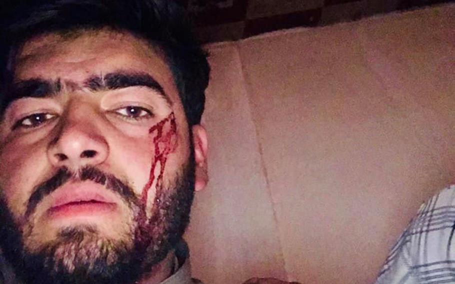 A man who identified himself on Facebook as Milad Kohistani, a student, posted this photo during the attack on Kabul University on Monday, Nov. 2, 2020.
