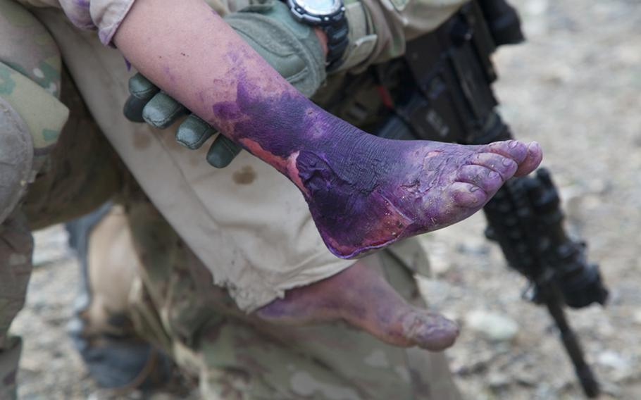 U.S. soldiers treat a young Afghan boy with first- and second-degree burns to his feet after he limped toward them for help. Injuries such as burns and broken fingers are often treated by Afghan doctors with little more than colored dye in this part of Khost province, despite the fact there is a government hospital less than 10 miles away.