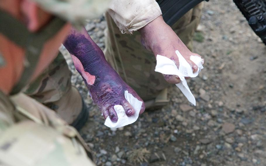 Gauze separates the toes of a young burn victim in order to keep the toes from welding together as they heal.