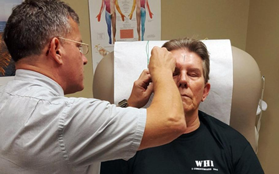 Navy veteran Peter Johnson receives acupuncture at the VA Greenville Health Care Center, N.C., in November 2016 to help relieve chronic headaches caused by massive head and eye injuries he suffered during the Vietnam War.