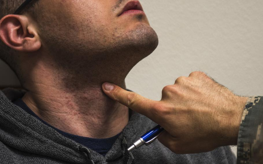 An airman raises his head as Lt. Col. David Gregory, 9th Medical Group chief of medical staff, inspects his neck and face during a shaving waiver course at Beale Air Force Base, Calif., in March 2018. Service members will no longer need a waiver to get laser treatments for severe razor bumps at a civilian facility, Tricare announced.  Colville McFee/U.S. Air Force