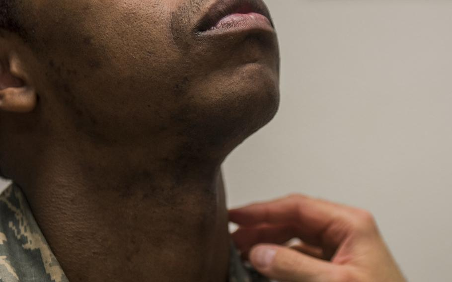 An airman raises his head as he has his neck and face inspected during a shaving waiver course at Beale Air Force Base, Calif., in March 2018. The Air Force surgeon general has authorized a five-year shaving waiver for airmen and Space Force personnel who have been diagnosed with razor bumps.
