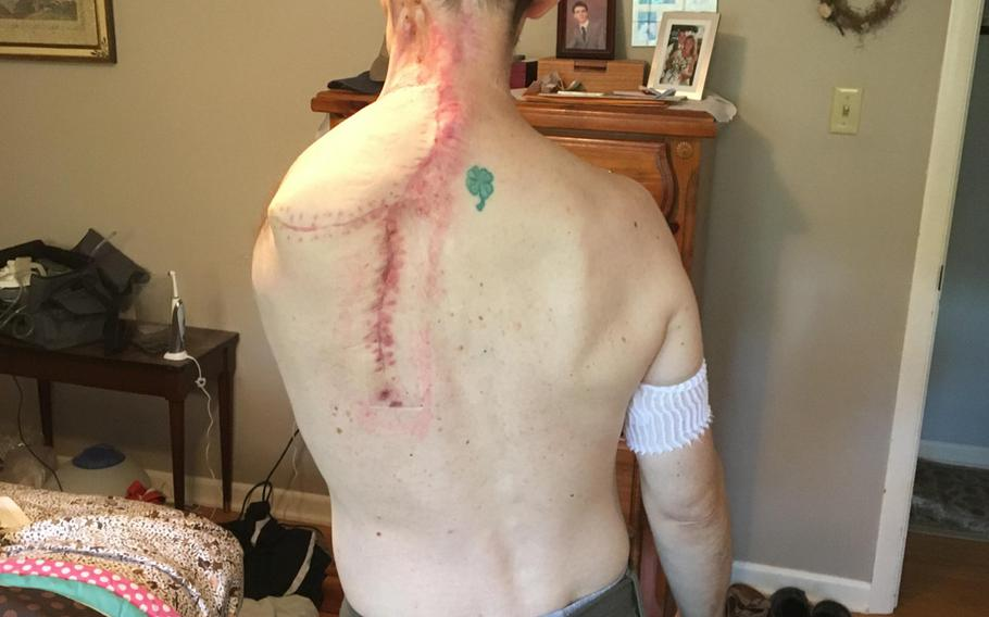 Former Air Force Maj. Brian Liebenow shows the scar that runs down his back since he had surgery in September 2016 to amputate his left arm, part of his clavicle and three ribs. The surgery was needed after a wound failed to heal after Liebenow had skin cancer.