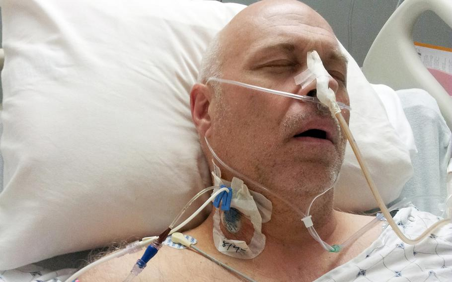 Army veteran David Sewell, seen here after surgery in 2013, said he was diagnosed that year with mesothelioma from asbestos. He believes he was exposed to asbestos during remediation work at Camp Walker, South Korea.